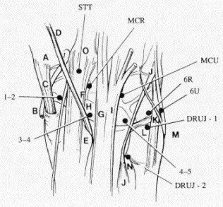 References in Triangular Fibrocartilage Complex Tears in