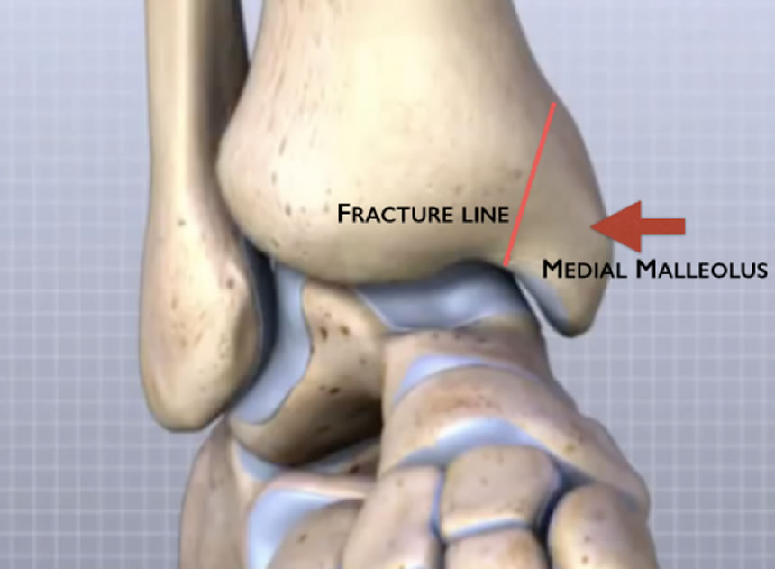 diagram of tibia stress fracture what is a bohr rutherford wiring online medical summary with literature review by dr branson persisting tibial x ray