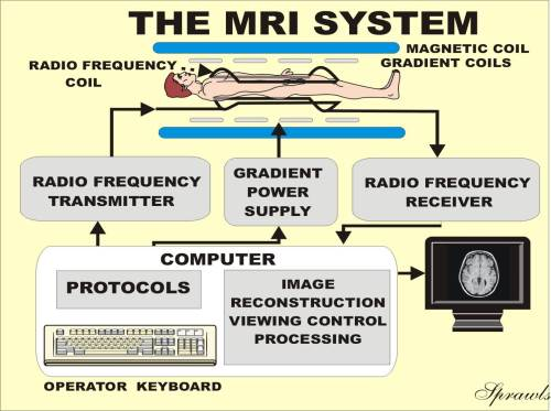 small resolution of mri magnet diagram