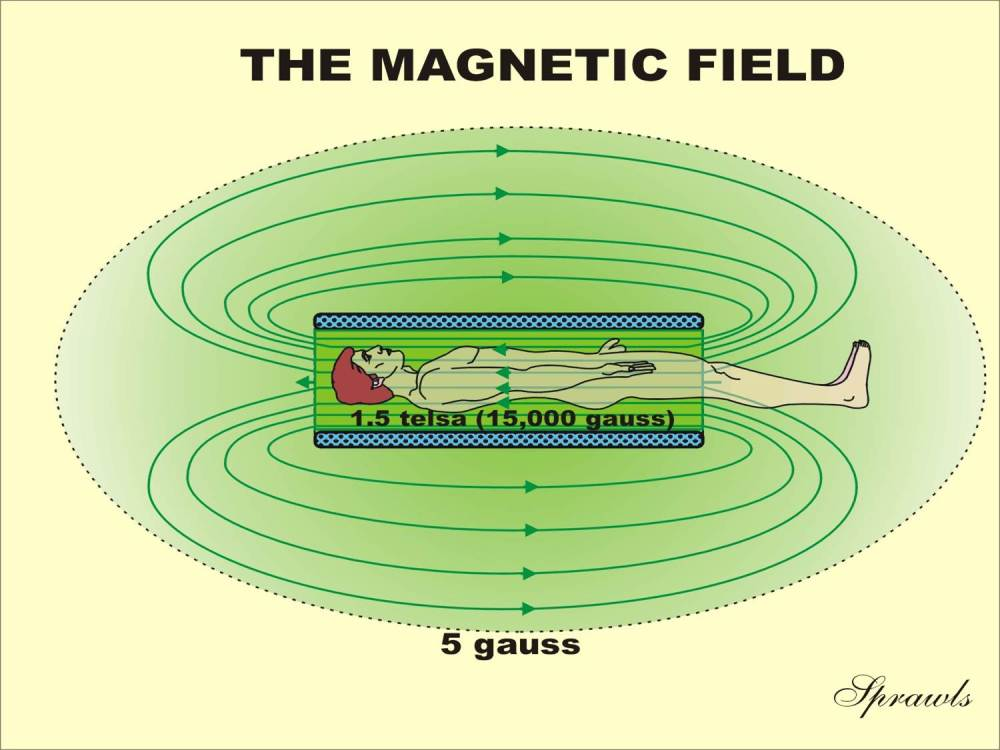 medium resolution of the magnetic field produced by superconducting magnets