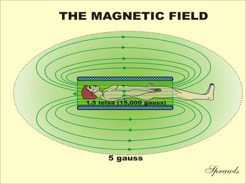 small resolution of the magnetic field produced by superconducting magnets
