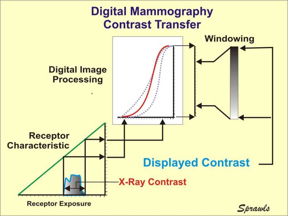 medium resolution of digital mammography provides several advantages over film for optimizing the contrast transfer from the breast to the image display and the maximizing the