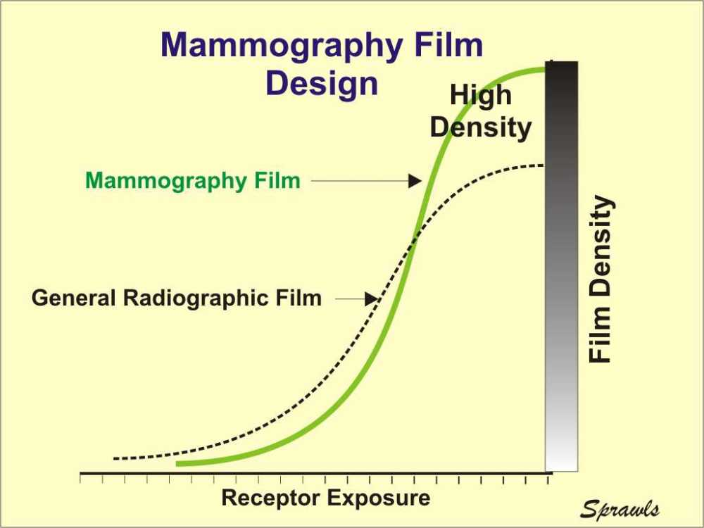 medium resolution of for mammography we need two film characteristics that generally are conflicting with each other first we need a steep characteristic curve because that