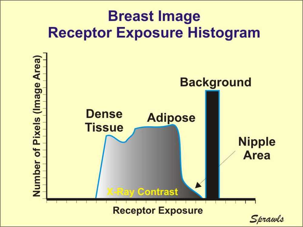 medium resolution of as the x ray beam exits the breast it contains an image in the form of different levels of exposure produced by the variation in penetration through the