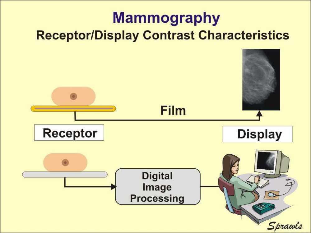 medium resolution of digital x ray block diagram