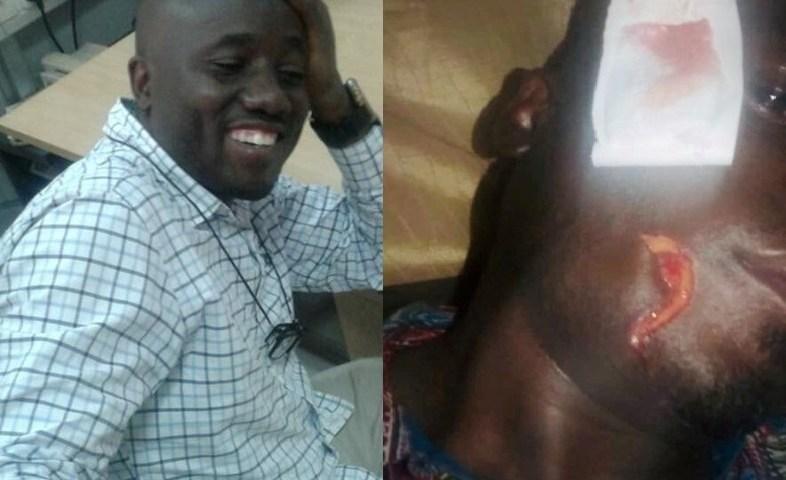 Vision Group Journalist Etukuri Attacked, Cheats Death