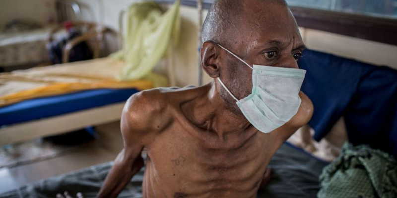African Deadliest Tuberculosis Strain Gets Approved Tretment.