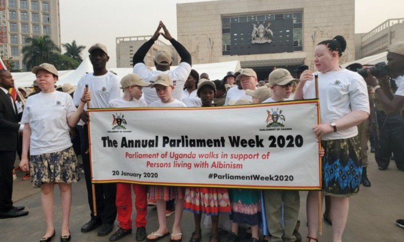 Parliament To Construct Rehabilitation Center For Persons With Albinism