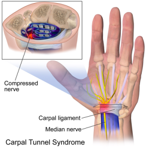 Carpal Tunnel Syndrome Treatment Mississauga