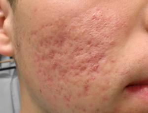 copper peptides scars