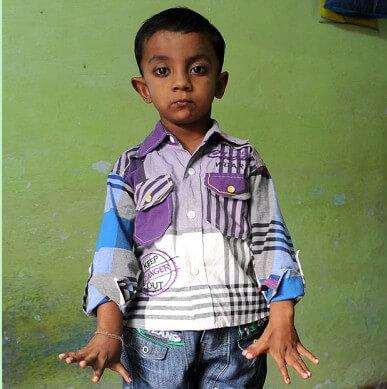 Dječak se rodio s 25 prstiju i postao atrakcija