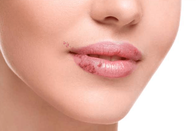 Image result wey dey for How do you get rid of a bump on your lip?
