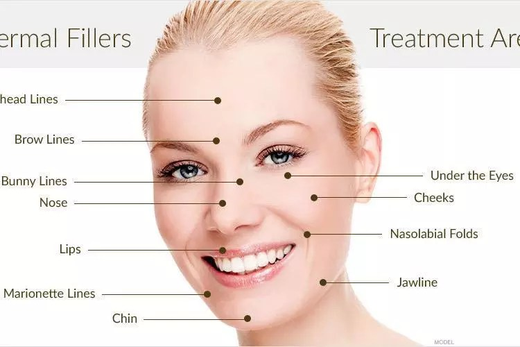 Aftercare Tips for dermal filler