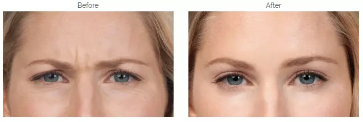 anti wrinkle injection in Ealing London