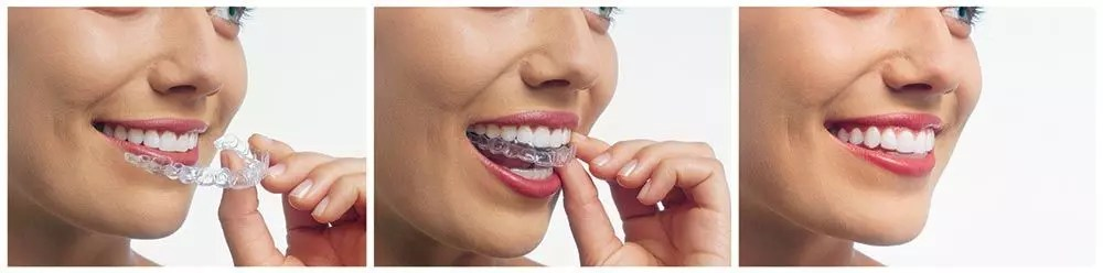 Affordable Invisalign In Ealing, London