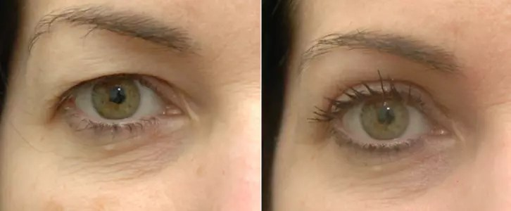 Nano Plasma Eye Lift Before & After