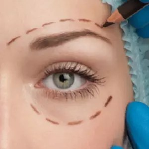 Non Surgical Eye Lift in ealing, London
