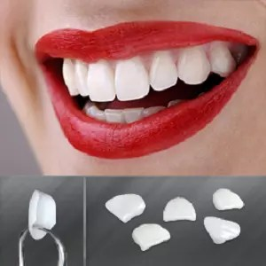 Dental Veneers Ealing, London
