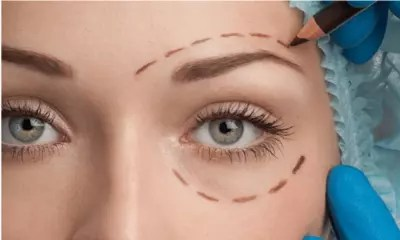 Non Surgical Eyelid Correction London
