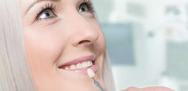 Aftercare Process for Veneers