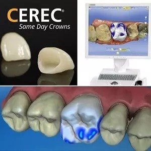 same day dentistry ealing -sss clinic