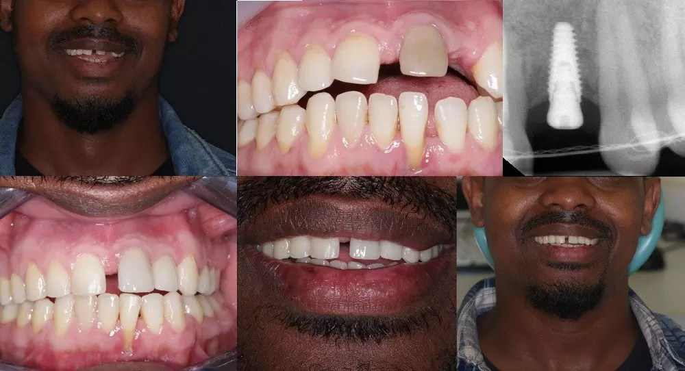 Combination Of Implants & dental veneer