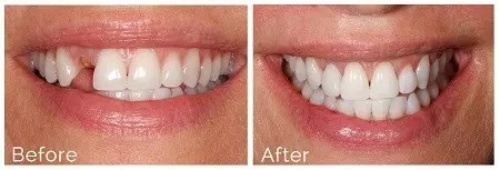 implant dentist in Ealing & Hanwell