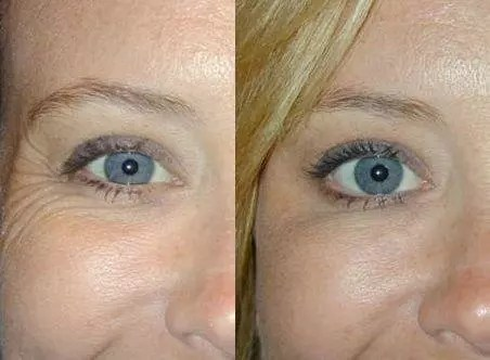 wrinkle treatment ealing