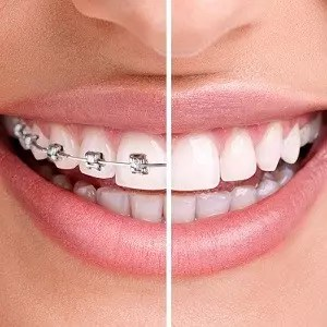 Ealing orthodontics
