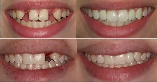 Implant In Ealing, West London