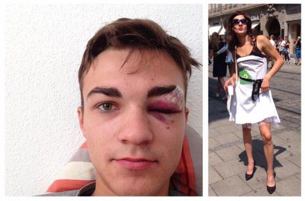 Marcel Rohrlack, Sprecher der Grünen Jugend München, wurde bei einem Angriff nach CSD-Parade verletzt Quelle Foto: Marcel Rohrlack, Facebook