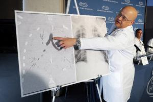 "ASSOCIATED PRESS                                 Dr. Hassan Nemeh, surgical director of Thoracic Organ Transplant, showed areas of a patient's lungs, Nov. 12, during a news conference at Henry Ford Hospital in Detroit. Health officials now blame vitamin E acetate for the ""vast majority"" of cases in the U.S. outbreak of vaping illnesses and they say doctors should monitor patients more closely after they go home from the hospital."