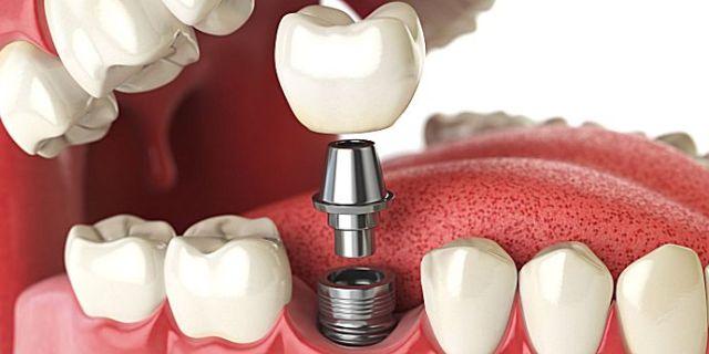 Implantul dentar – raspunsurile la cele mai frecvente intrebari