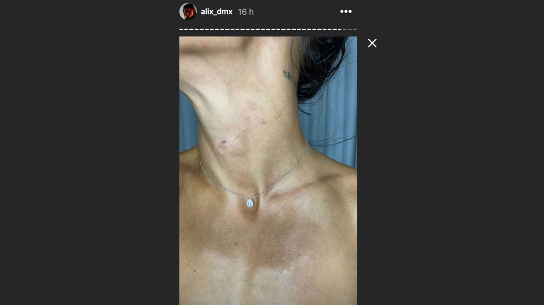 Alix agressée par la police espagnole : les photos chocs