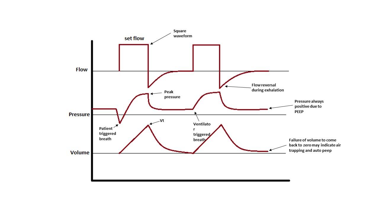 Ventilator Management Article