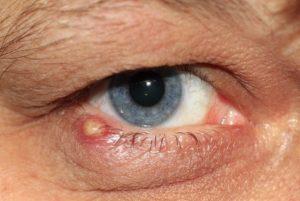 Eye Stye - Night Blindness