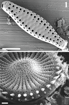 Diatoms are microscopic algae that are sensitive to water quality, and their intricate glass cell walls are preserved in the lake sediment (mud).  Their record in the sediment thus provides a record of water quality.