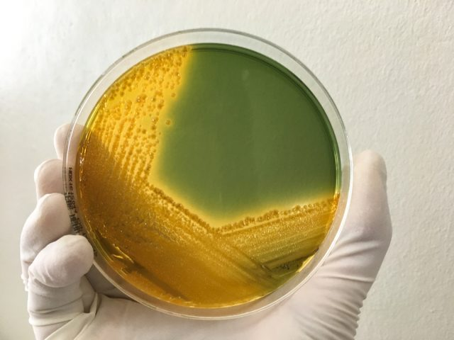 Enterobacter Cloacae: Facts. Symptoms. Treatment   STD.GOV Blog