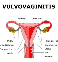 just like cervicitis leads to inflammation of uterus this leads to infection and inflammation in the outer vulva and inner vagina  [ 1000 x 792 Pixel ]