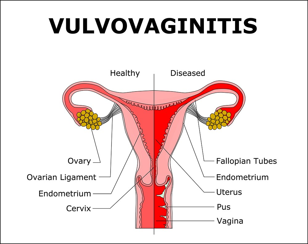 hight resolution of just like cervicitis leads to inflammation of uterus this leads to infection and inflammation in the outer vulva and inner vagina