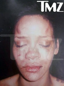 Rihanna, after the skirmish with Chris. (From TMZ)