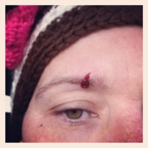 This is my face. This is my face with eyebrow blood. It is an unfortunate situation.