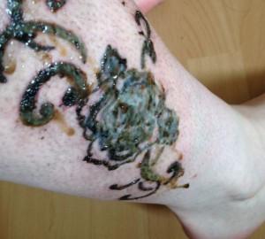 Tatuaje Infectado Sintomas De Infección Steel Of Doom Tattoo