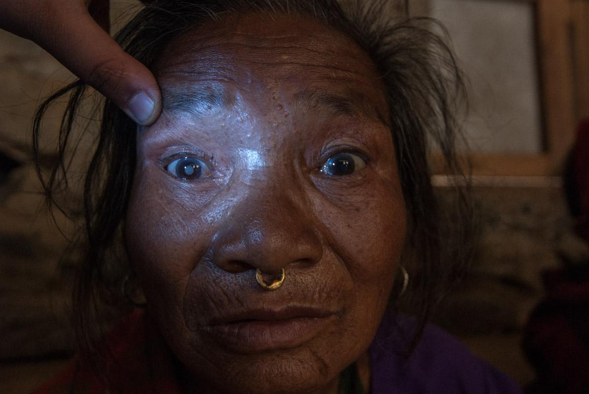 Nepal_Blindness_6406
