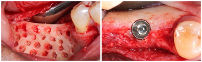 ridge augmentation surgery