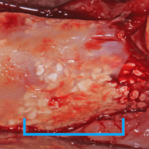 Oral surgery, membrane removed