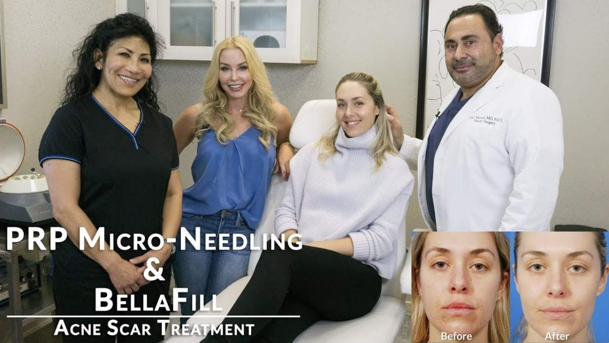 PRP Micro-Needling & BellaFill /// Acne Scar Treatment