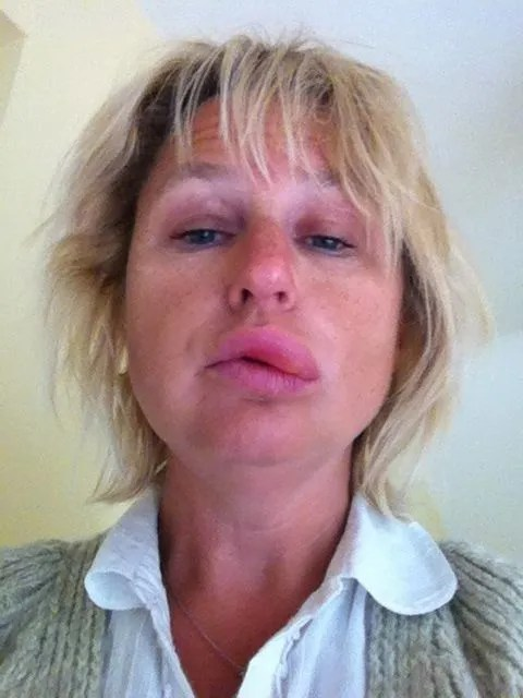 Oral Allergy Symptoms After Eating Cake