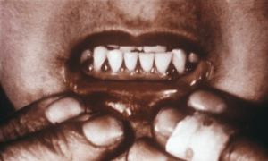 Scorbotic gums via Wikipedia