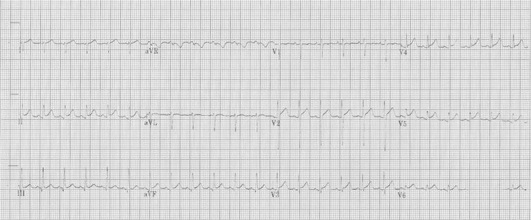 ECG in myocarditis